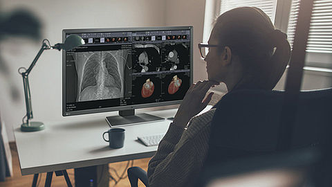 Monitor solutions for teleradiology